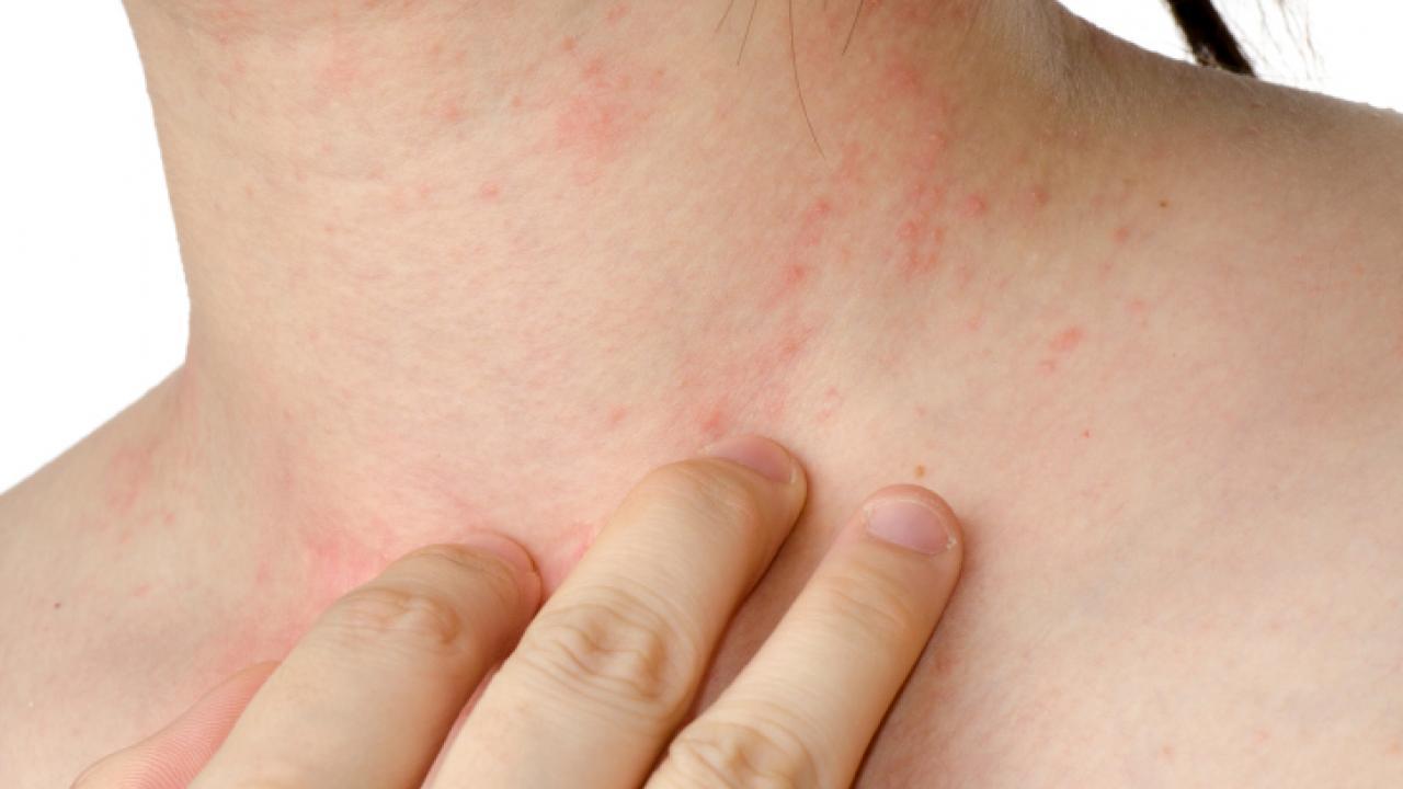 Какие существуют симптомы псориаза? Что вызывает его?