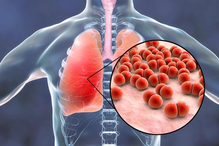 Бактериальная пневмония - причины, симптомы и лечение