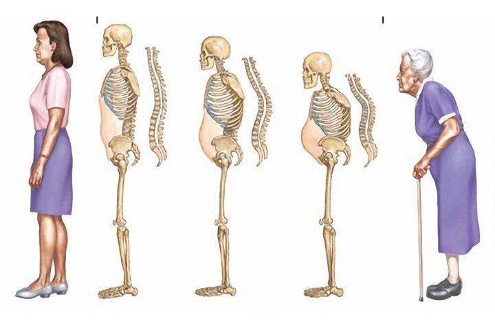 Остеопороз. Когда метаболизм не работает?