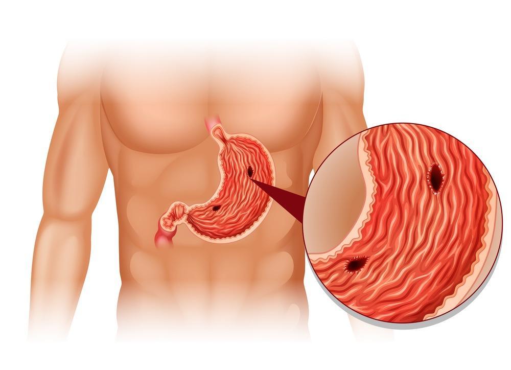 Почему возникает язва желудка? Не игнорируйте эту угрозу здоровью!