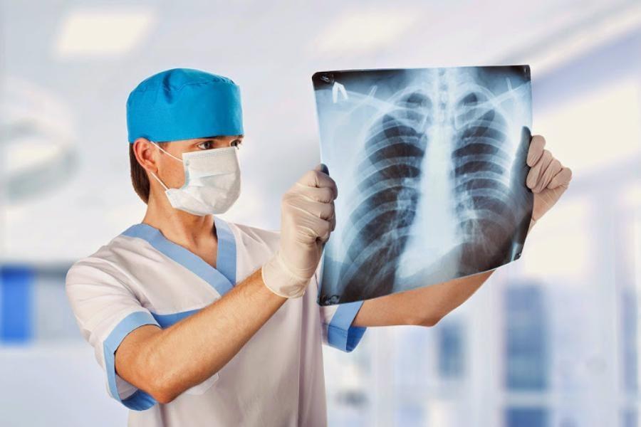 Туберкулез: симптомы, причины, методы диагностики и стадии болезни