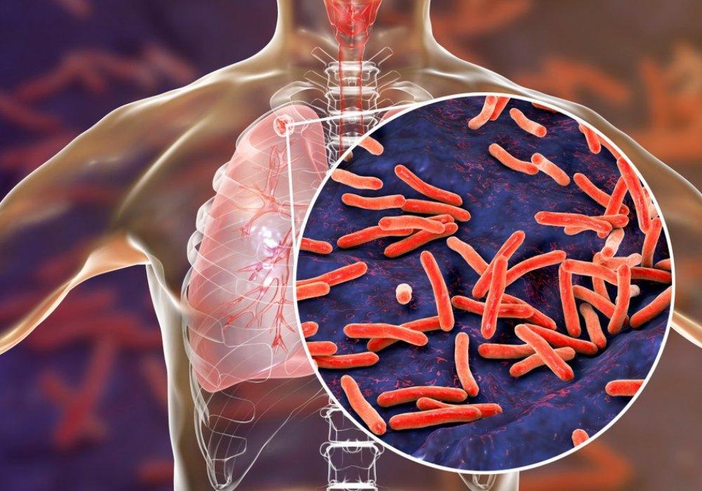 Как защититься от туберкулёза