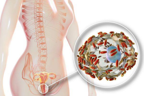 Бактериальный вагиноз
