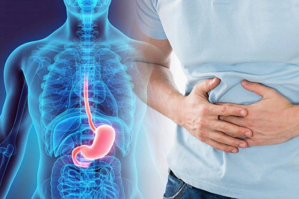 Синдром раздраженного кишечника - кто в группе риска? Причины, симптомы и лечение