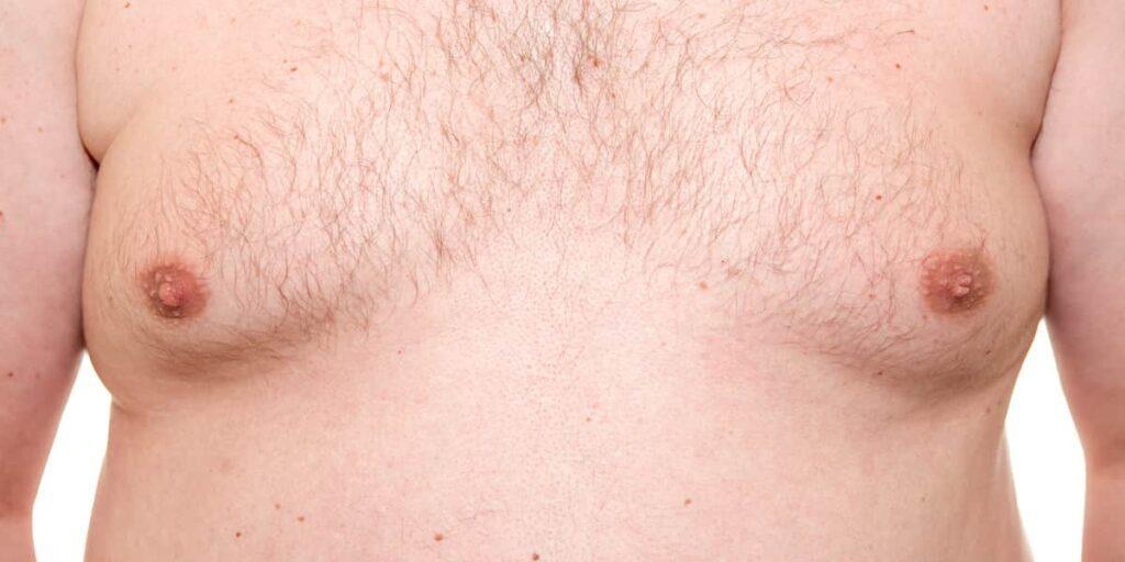 Увеличение груди у мужчин. Почему так бывает и как это лечить?