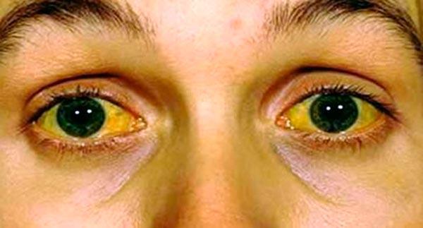 Лептоспироз - причины, симптомы, лечение и осложнения